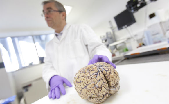 Imperial brain research